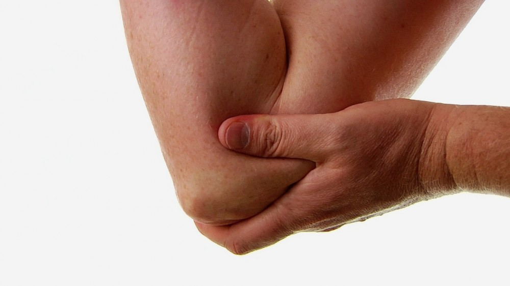 Cubital Tunnel Syndrome- Involves Your Funny Bone... But Certainly NOT Amusing!
